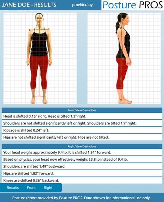 Posture Analysis, Posture Screen by Posture PROS Online Posture Screens