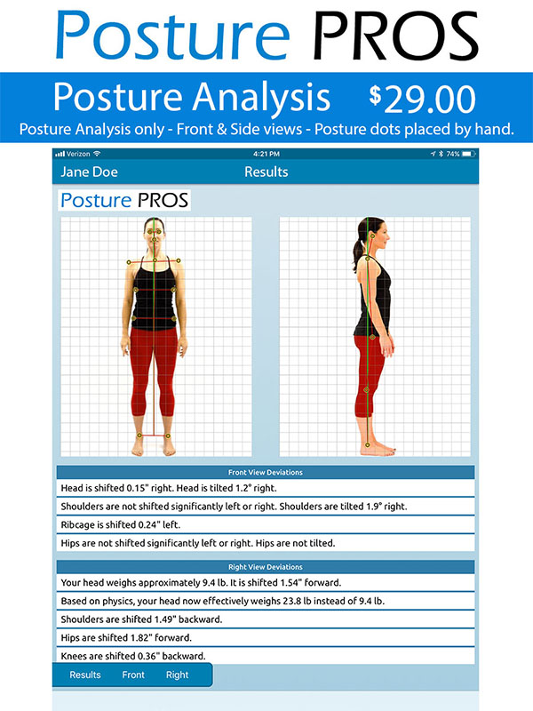 Posture PROS Posture Analysis Posture Screen Posture Analysis Only